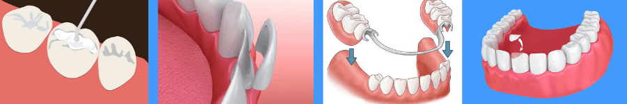 There are several types of restorative dental procedures a Louisville, KY dentist can do.