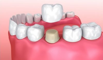 A dental crown is a common procedure to restore a smile in Louisville, KY.