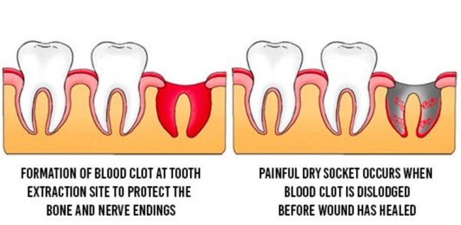 After a tooth extraction, your Louisville, KY oral surgeon will help you to prevent a dry socket.
