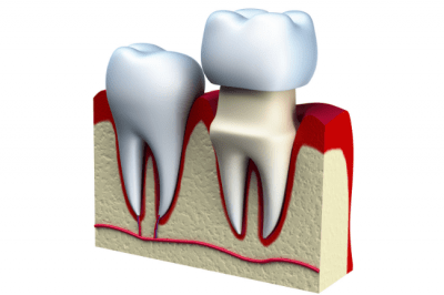 A dental crown is a cap placed over a tooth to cover it completely in order to restore its size, shape, or strength.